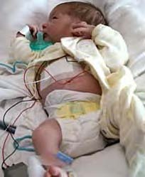 Caring for High Risk Infants in Foster Care